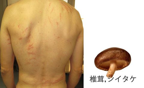 Eritema flagelado por setas Shiitake